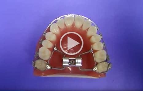 Palatal Expander Kadan Orthodontics in Doylestown, Chalfont, Harleysville PA
